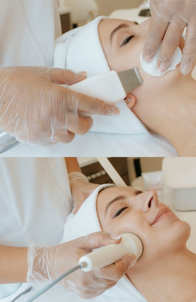 facial antiacne